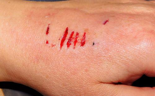 dogbite-scars